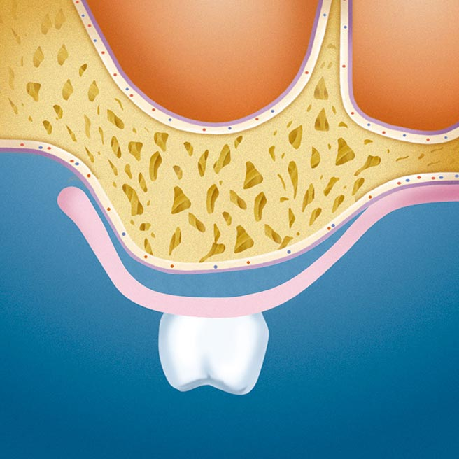 Cavities beneath jaw ridge and denture | Protefix